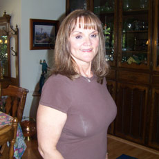 Debbie After Bariatric Plastic Surgery